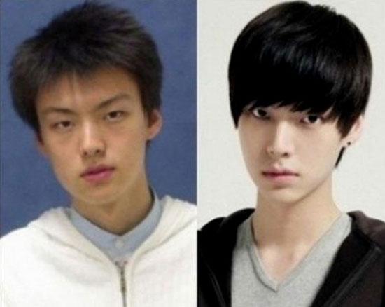 韓國,整形,割雙眼皮,微整型,韓星整型